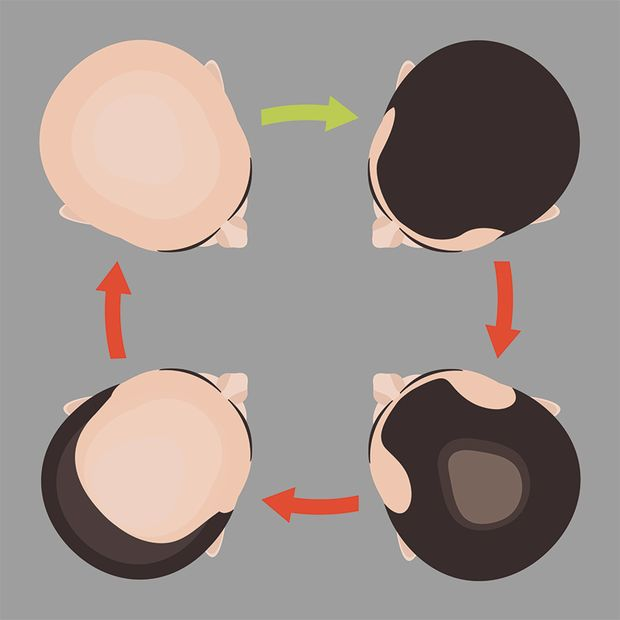 Typischer Verlauf von genetisch bedingtem Haarausfall bei Männern