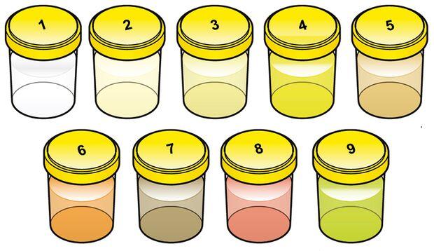 Unsere Urin-Farbskala verrät Ihnen, welche Urinfarbe normal ist und ab wann es gefährlich wird