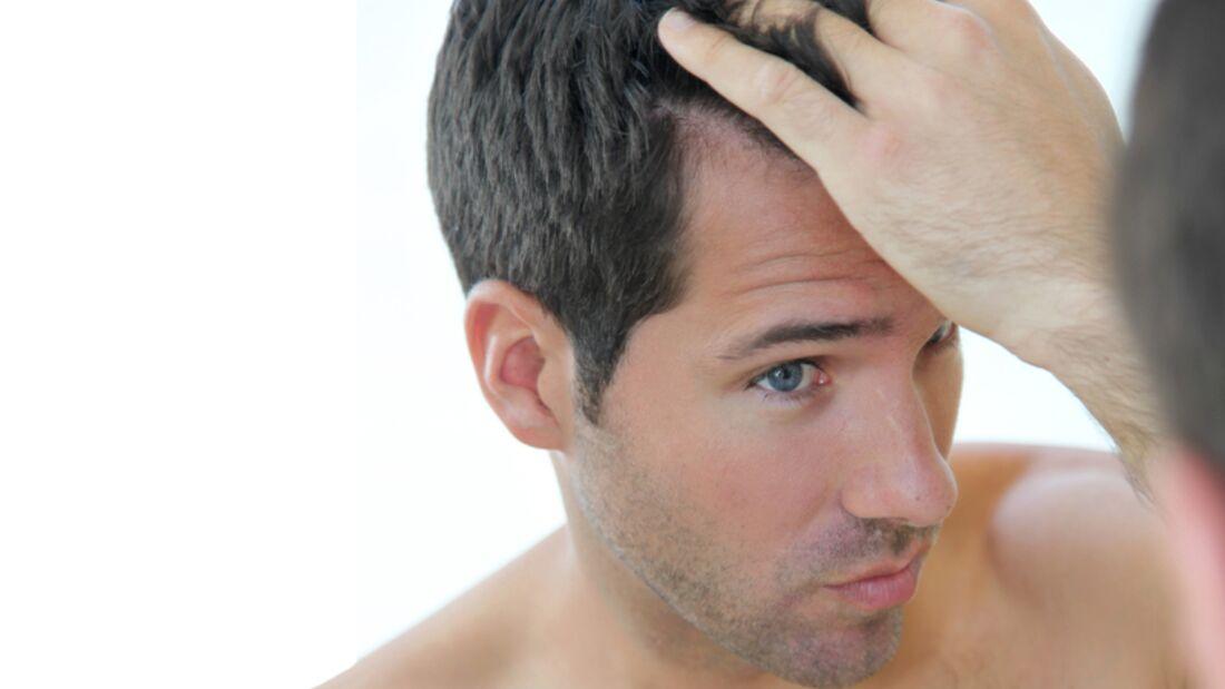 Viele Männer denken gelegentlich über Haartransplantation nach