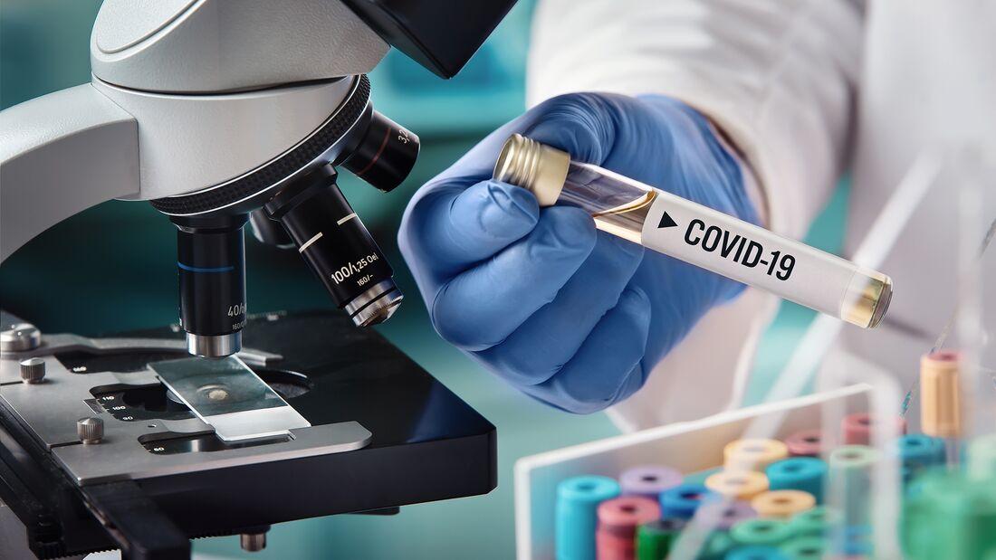 Weltweit sind Forscher auf der Suche nach einem Medikament gegen das neuartige Coronavirus