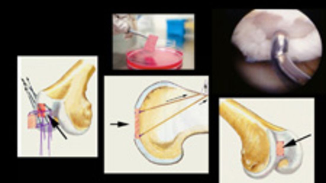 Zell-Transplantation