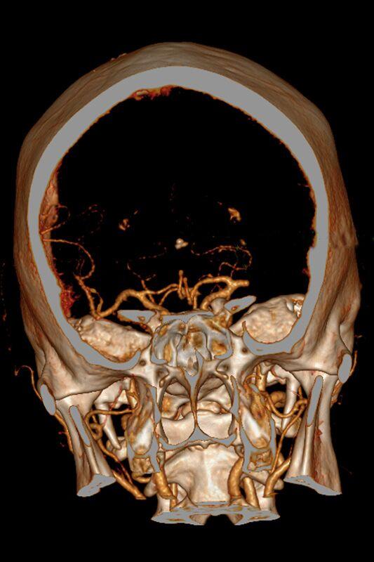 c Gehirn_Verschluss_Arterie_533.jpg