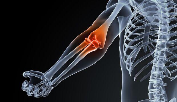 jeder Sport, bei der stumpfe Stöße und Stürze dazgehören, kann eine Schleimbeutelentzündung auslösen